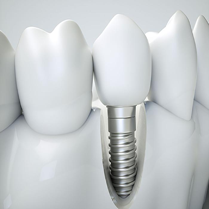 Есть ли ограничения и противопоказания по установке имплантатов?