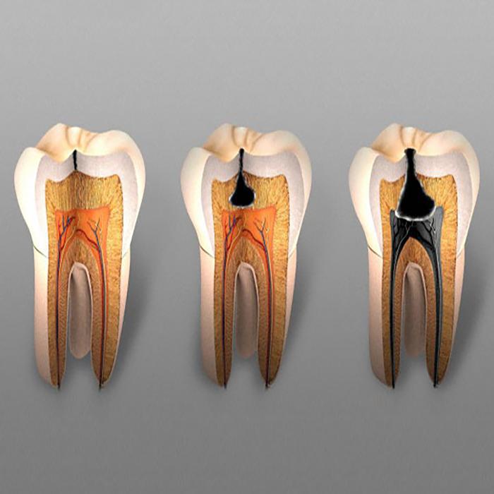 Каковы причины разрушения зуба?