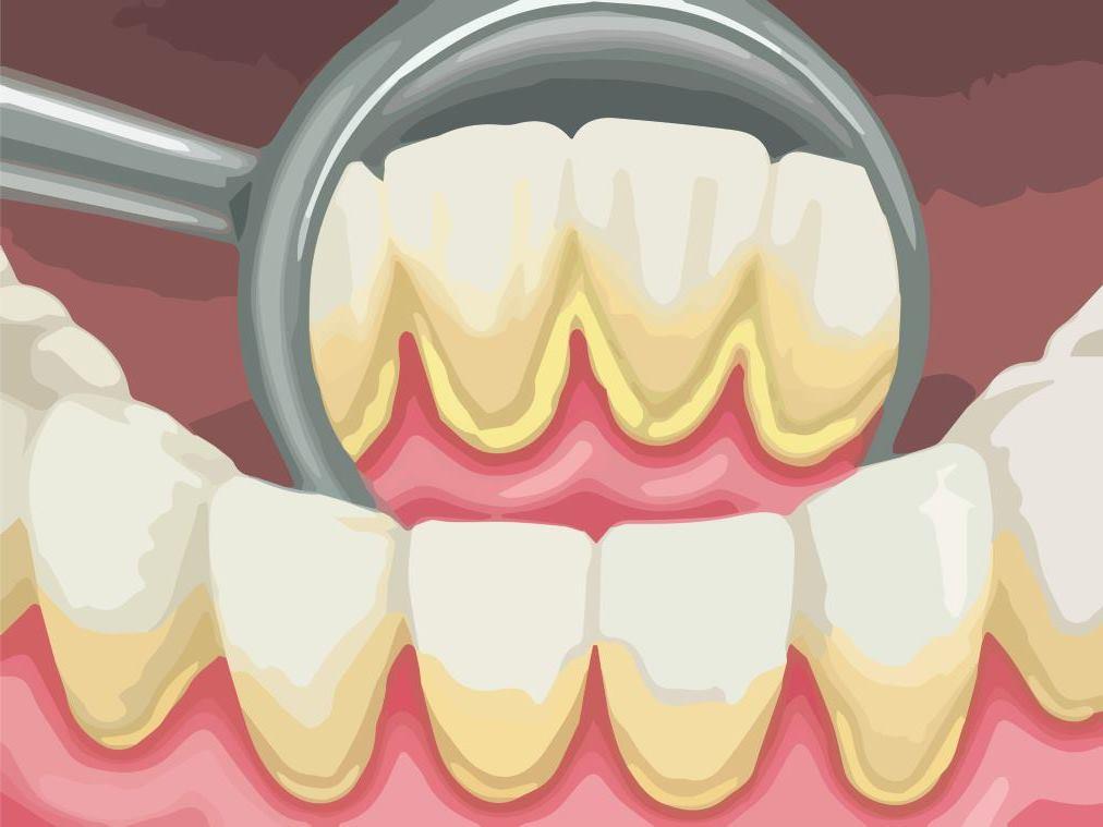 Зубной камень — что нужно знать каждому?