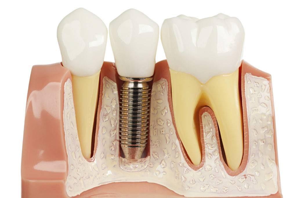 Какую имплантацию зубов выбрать?