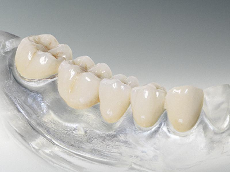 Мифы про зубные коронки