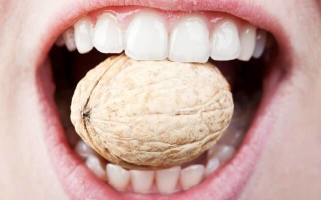Причины и симптомы появления кариеса на передних зубах