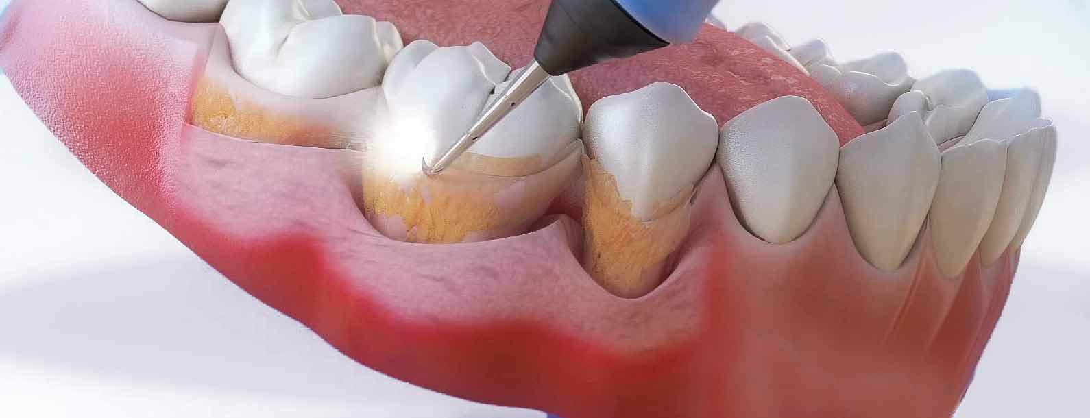 Зубной камень: Осложнения и профилактика образования