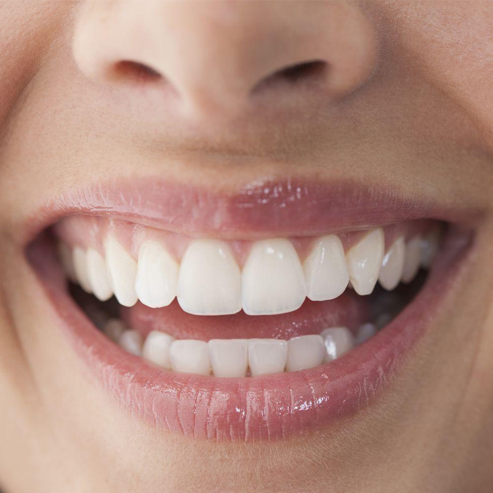 Отбеливают ли отбеливающие зубные пасты?