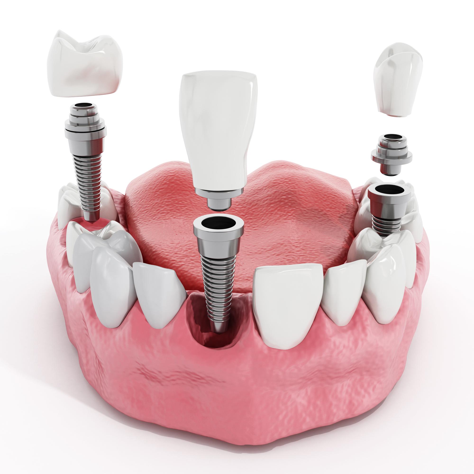 Сколько дней длится боль после имплантации зубов?
