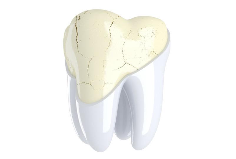 Трещины в зубной эмали — в чем главная опасность?
