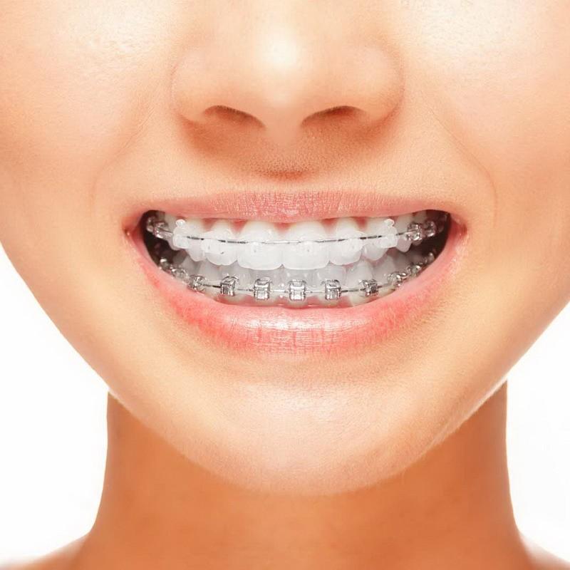 Сколько носят брекеты на зубах? – Как долго ждать безупречной улыбки?