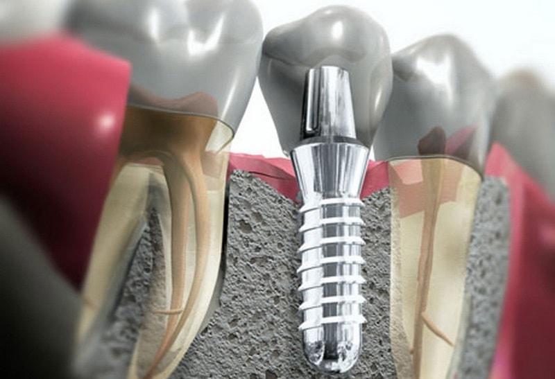 Современная установка штифта в зуб