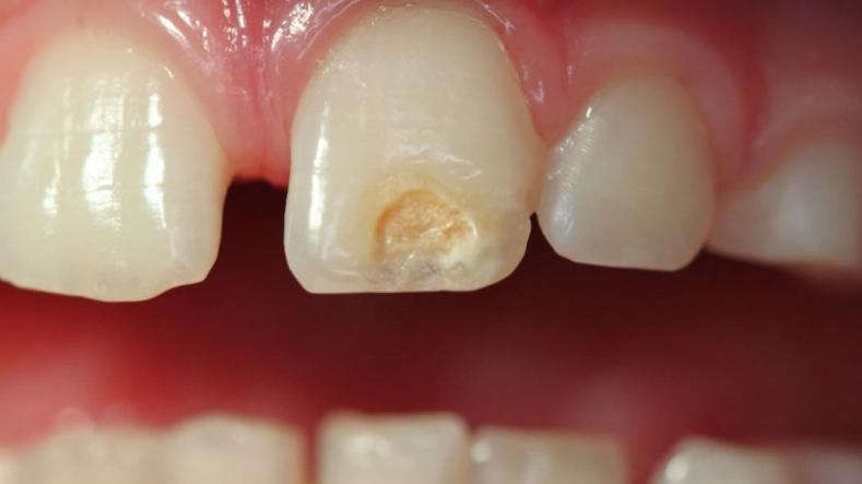 Гипоплазия зубной эмали: причины и симптомы