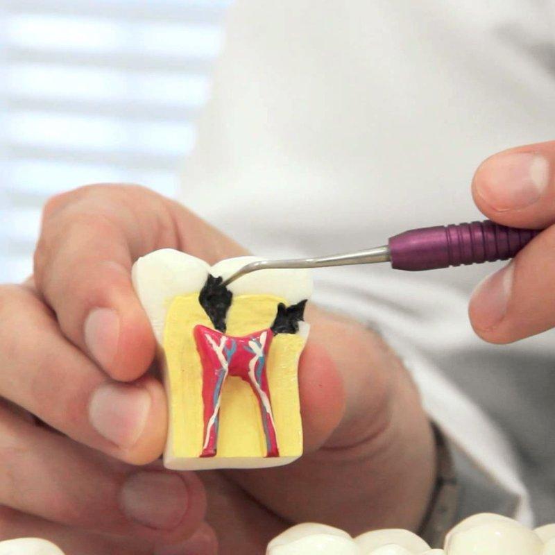 Стоматология: Лечение пульпита