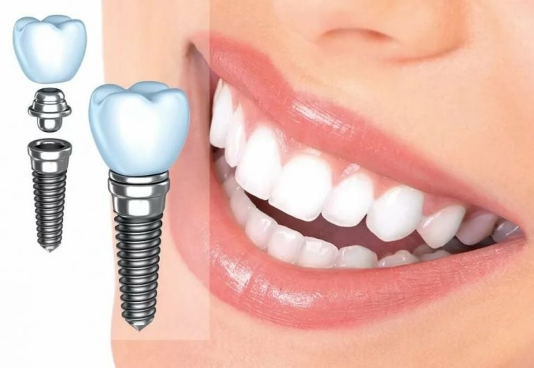 Зубные импланты Inno – почему стоит выбрать их? Преимущества уникальной технологии