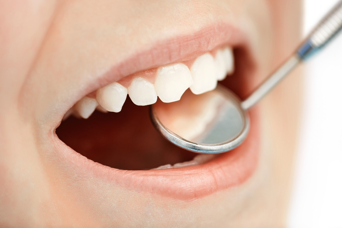 Что делать когда сломался зуб? Скорая стоматологическая помощь