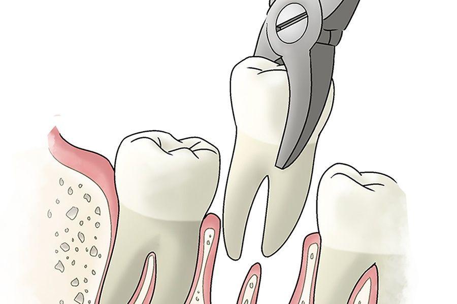 Зачем удалять зубы мудрости? Зачем они вообще нужны?