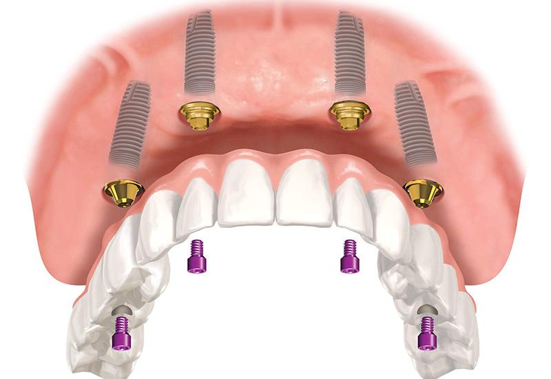 Одномоментная имплантация. Восстановление зубов за 1 день по системе all on four