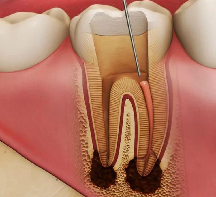 Пришеечный кариес зубов. Почему прикорневой кариес – самый опасный?