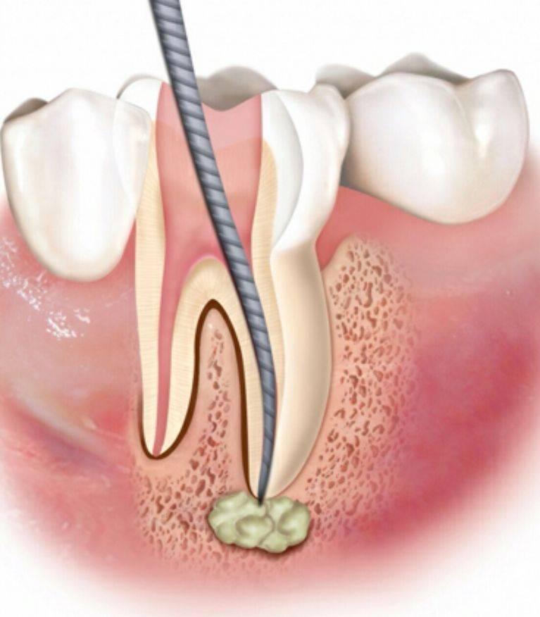 Что такое флюс зуба? Лечение периостита не терпит отлагательств!