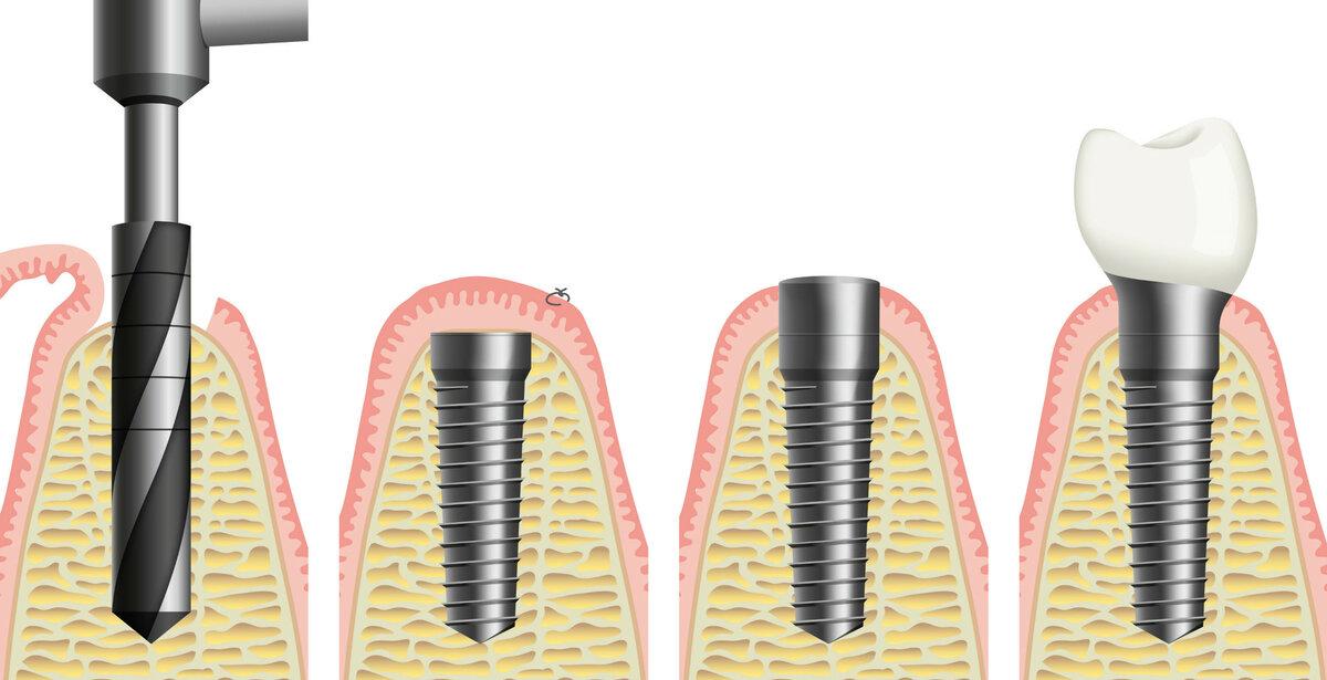Больно ли устанавливать импланты зубов? Спешим обрадовать обеспокоенных пациентов!