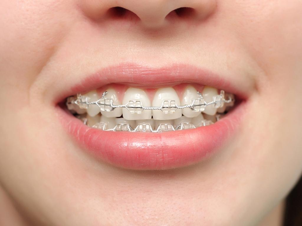До скольки лет ставят брекеты? Никогда не поздно для красивой и здоровой улыбки!