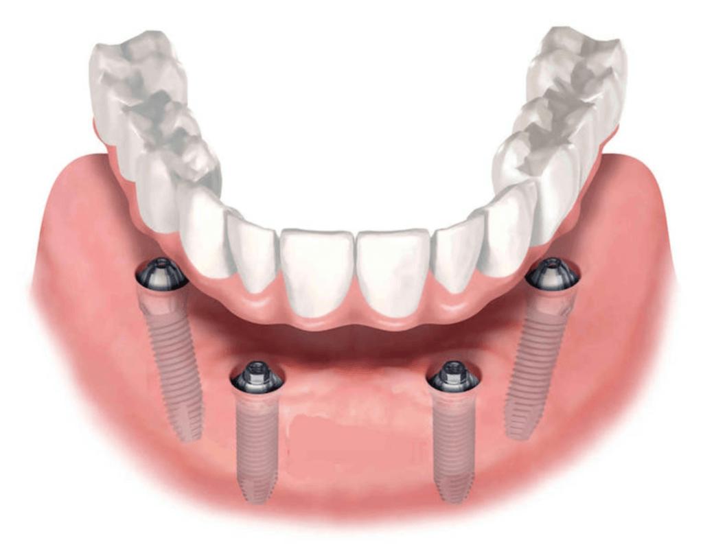 Особенности имплантации нижней челюсти – что нужно знать?