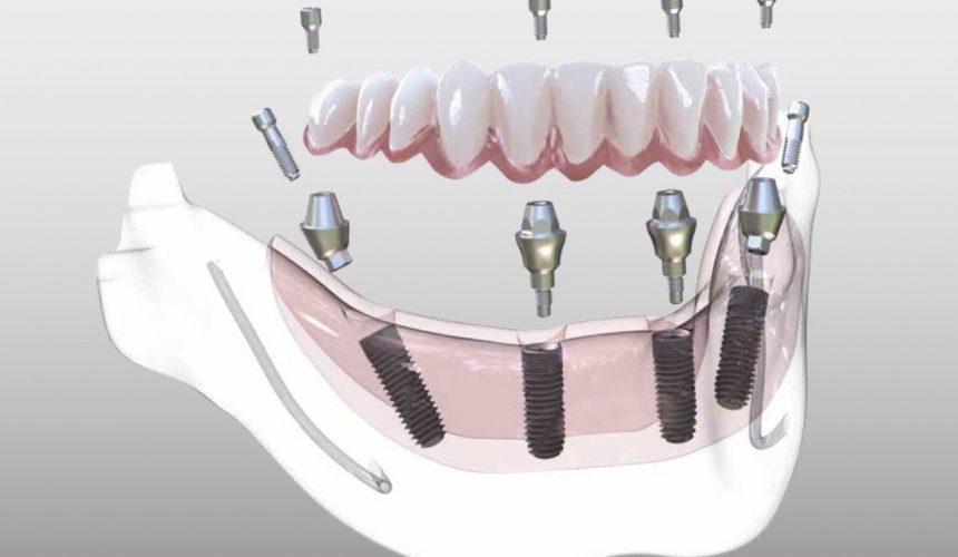 Протезирование зубов при пародонтозе