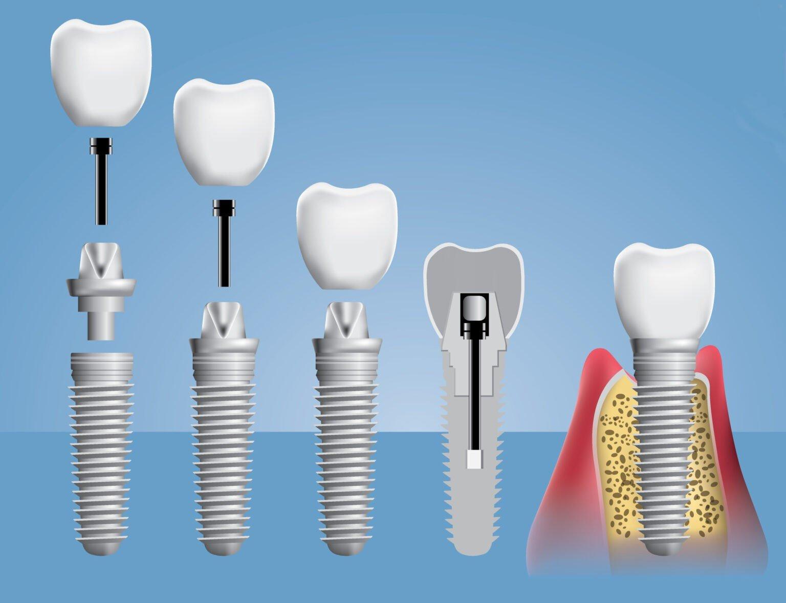 Зачем нужна имплантация зубов?