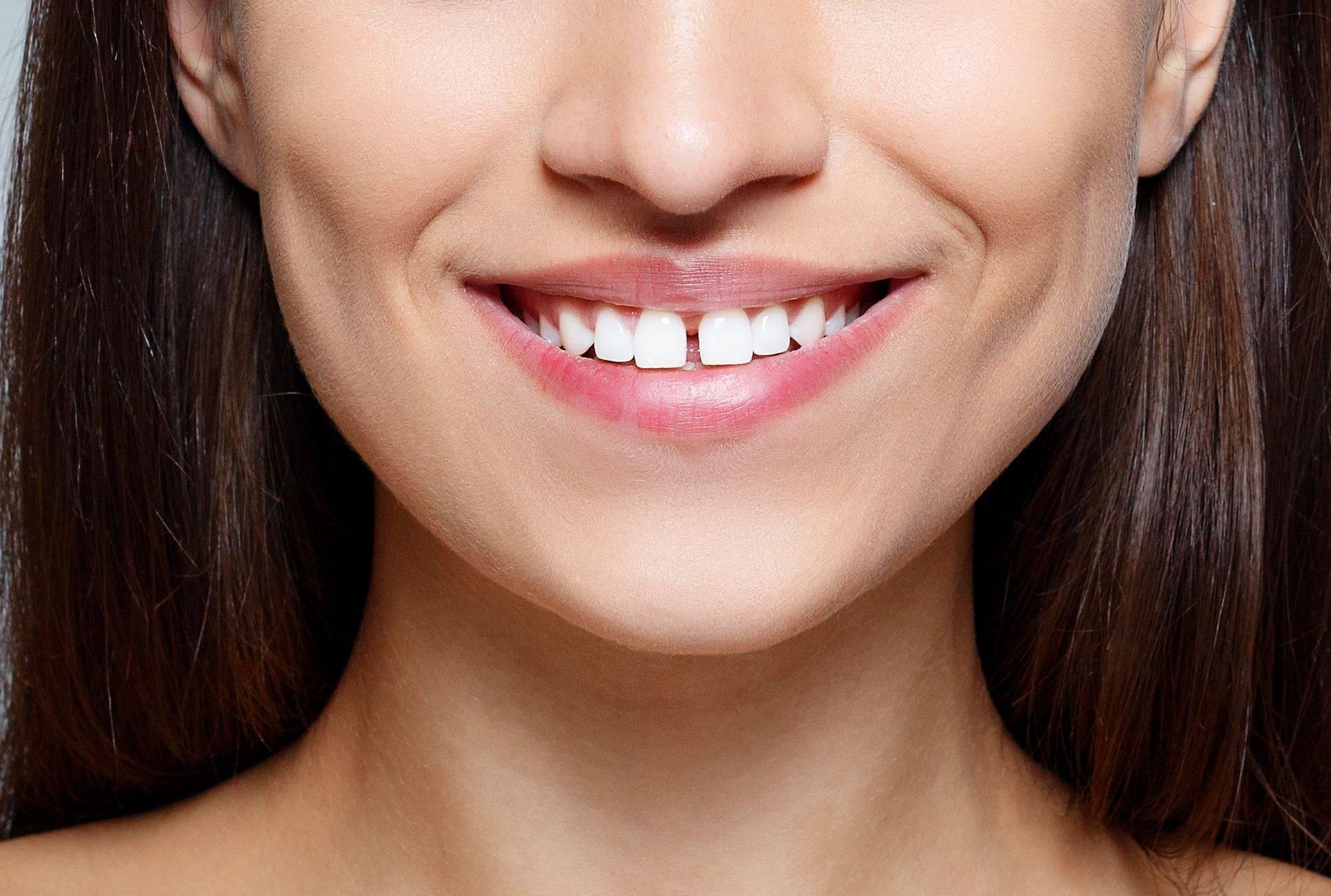 Как исправить щель между зубами