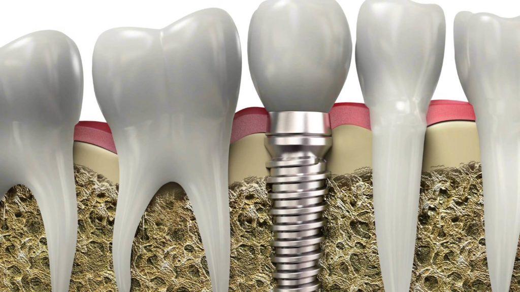 Как избежать отторжения имплантов?